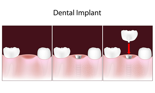 Dental Implants in Summerville